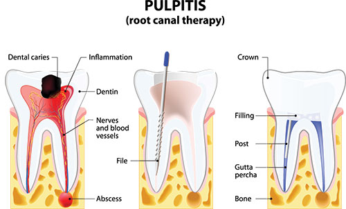 Root Canals in Newark